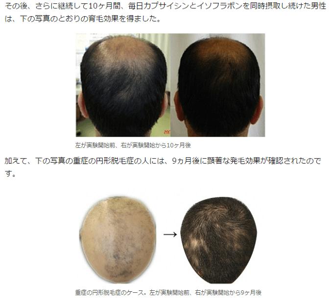 カプサイシンとイソフラボンの育毛効果
